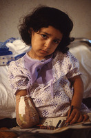 Child victim of a cluster bomb